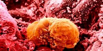 Dois testes que podem aumentar a taxa de implantação (EMMA e ALICE)