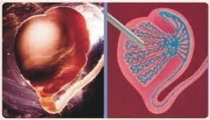 Punção de testiculo/epididimo